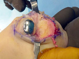 Picture of the implant placed into the big toe during surgery.