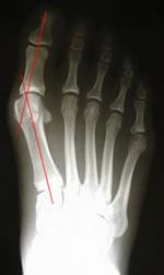 X-ray of mild to moderate bunion deformity prior to surgery