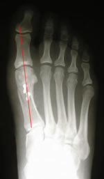 X-ray of mild to moderate bunion deformity with osteotomy procedure and screw fixation for hallux valgus correction