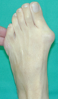 Picture of moderate to severe bunion and hallux valgus deformity
