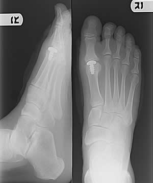 Post-operative x-ray of the partial big toe joint replacement.