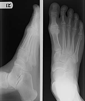 Pre-operative x-ray of end stage great toe arthritis resulting in hallux rigidus/limitus great toe pain