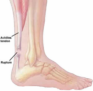 Animation image of achilles tendon tear