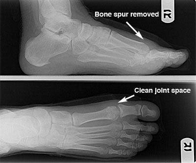 Post-operative x-ray showing bone spur removal and joint space clean up for hallux rigidus/limitus problem