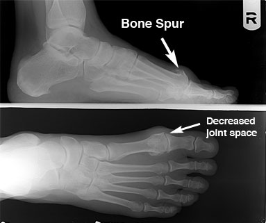 Pre-operative x-ray showing bone spurs and decreased joint space resulting in hallux rigidus/limitus